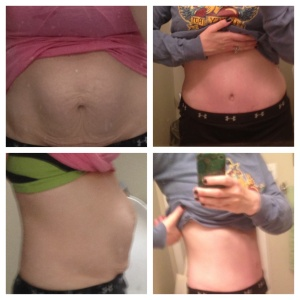 Before and after a full abdominoplasty to correct a hernia, diastasis, and excess skin from pregnancy.